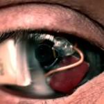 Электронный глаз